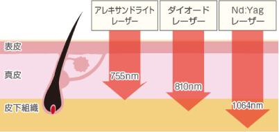 ソプラノチタニウム説明図